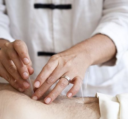 Cinq raisons d'avoir recours à l'acupuncture pour les migraines